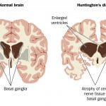 New hope for Huntington's disease?